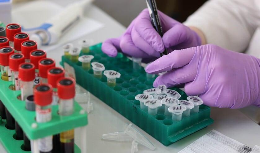 Alleen als de arts het nodig vindt, wordt getest op het COVIS-19 virus.