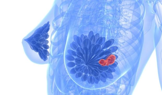 <p>Een vrouwenborst met tumor.</p>