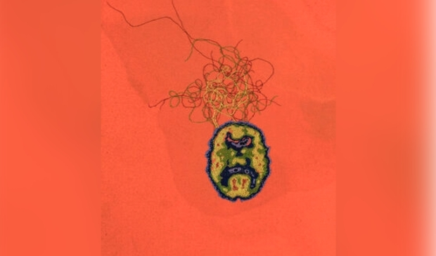 <p>Detail of Schizophrenia Stain (chatter).</p>