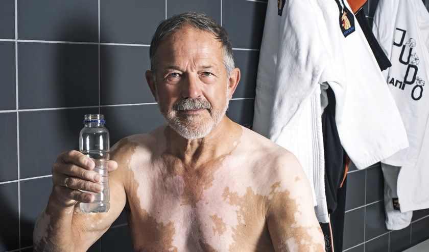 Leo Pekaar uit Yerseke is model voor belangenorganisatie Vitiligo.