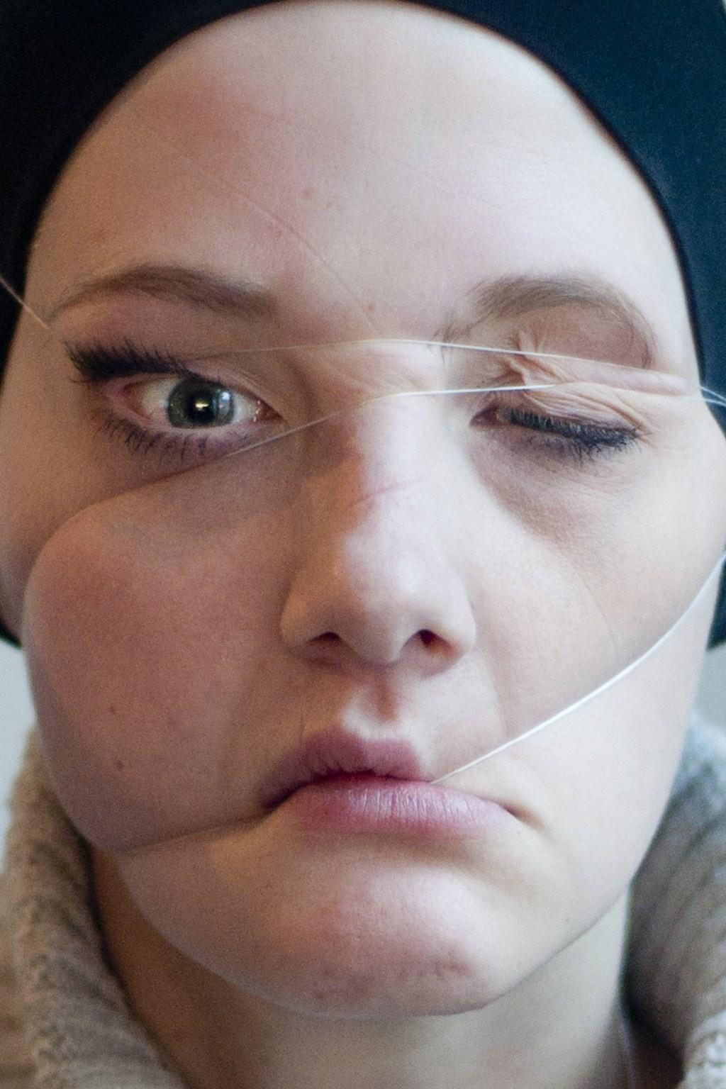 Links: Een foto van Yara Konings uit de serie 'Nerve'. Rechts: Yara op een ziekenhuisbed  © RODI Media-zh