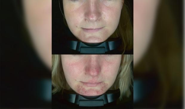 Huidirritatie door een mondkapje. Onder een foto van voor de behandeling en boven van erna.