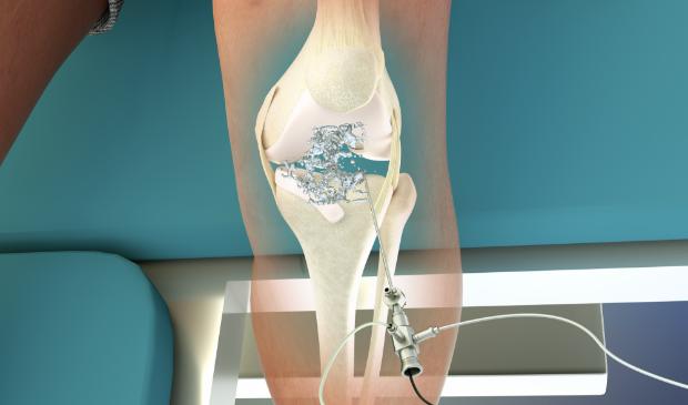 Animatie van een behandeling aan de knie