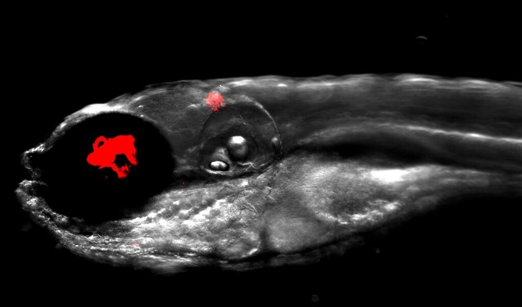 Zebravis die besmet is met rood oplichtende bacteriën uit menselijke longen.  (beeld Dr. Matt Johansen / Kremer Lab)