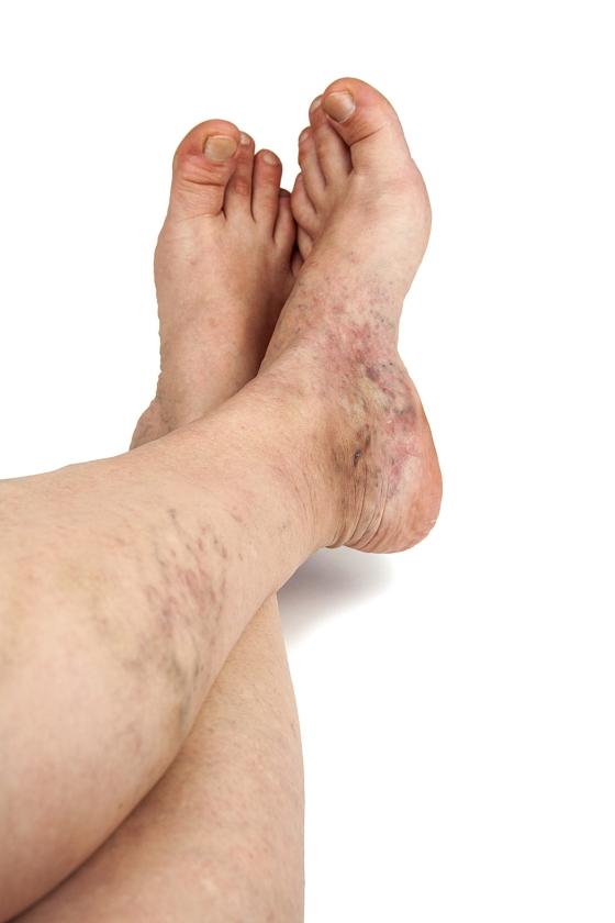Gezond: Krijg je spataderen van zitten met gekruiste benen?   (istock)