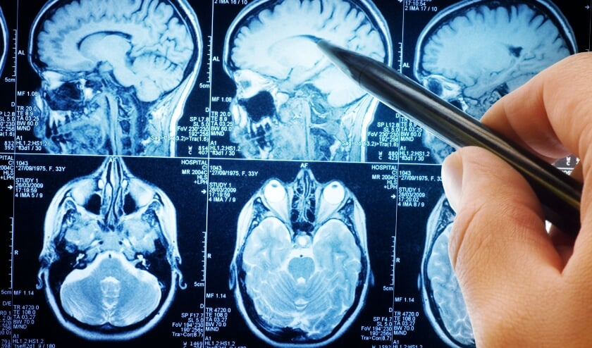 <p>Er zijn ongeveer 650.000 Nederlanders met niet-aangeboren hersenletsel. Goede ondersteuning helpt hen om hun leven weer op te kunnen pakken na zo&#39;n trauma.</p>