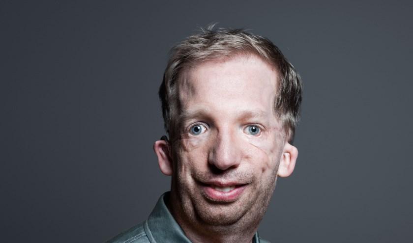 Arnoud Heinen schittert in de reclamecampagne van HandicapNL. (Foto: Robin de Puy)