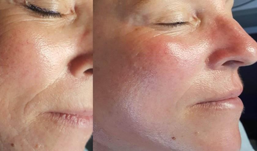 De grondige anti-aging behandelingen van Mijn Huidspecialist verjongen en verstevigen de huid zichtbaar.